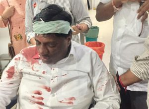 TRS MLA from Parigi injured in accident