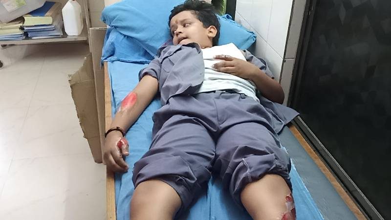 Auto carrying 7 school children met with an accident