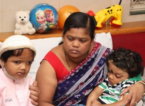 AIIMS doctors separate conjoined twins in Odisha