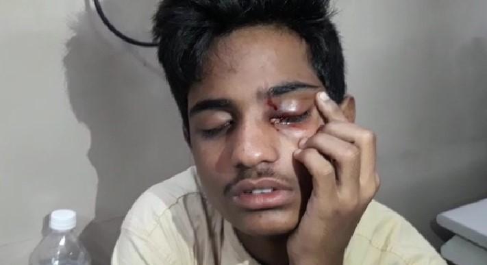 44 treated for eye injuries at Sarojini Devi Eye Hospital, Hyderabad