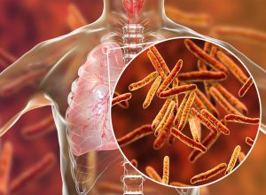 As Tuberculosis cases increase in India, TB deaths decrease; Centre aims to end TB by 2025