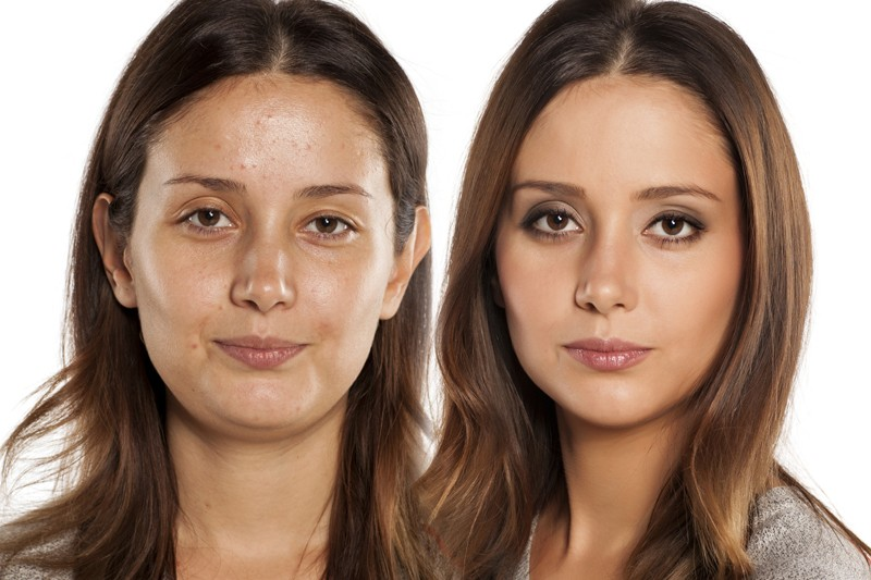 10 Best Home Remedies to Get Rid of Oily Skin on Face