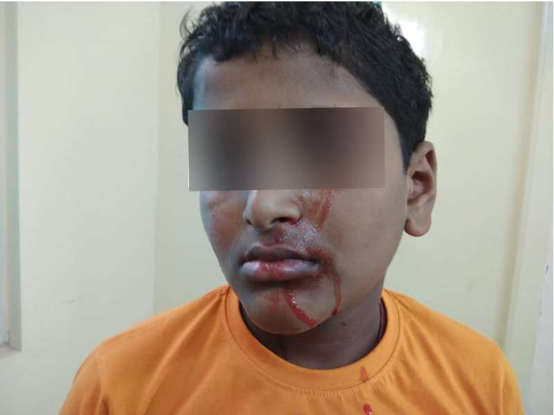 Nalgonda boy sheds blood from skin, treated