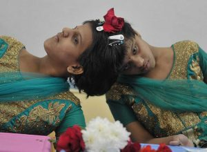 Conjoined twins Veena, Vani to get separate hall tickets