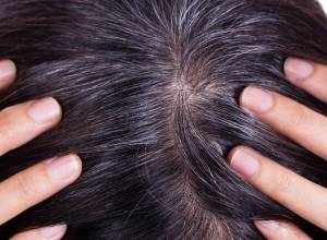 10 Best Home Remedies for Gray Hair at Young Age