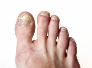 Onychomycosis/Toenail Infection: 10 Must-Try Home Remedies