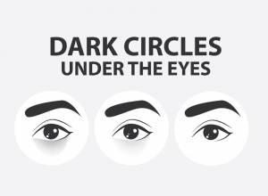 10 Best Essential Oils for Under Eye Dark Circles That Work!