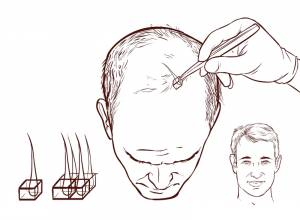 Hair Transplantation Side Effects and Risks you Should Know!