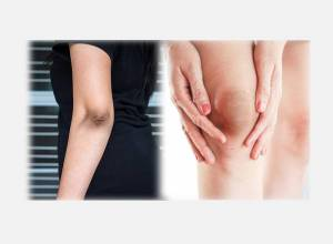 10 Best Home Remedies To Lighten Dark Elbows and Knees!