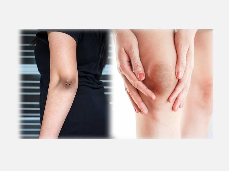 10 Best Home Remedies To Lighten Dark Elbows and Knees!