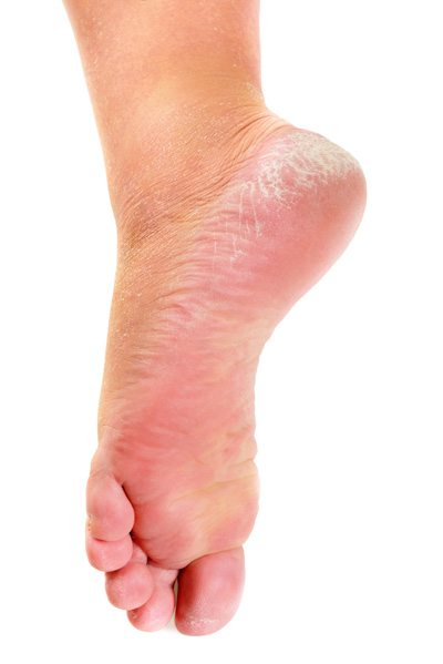 Leg cracks home remedy